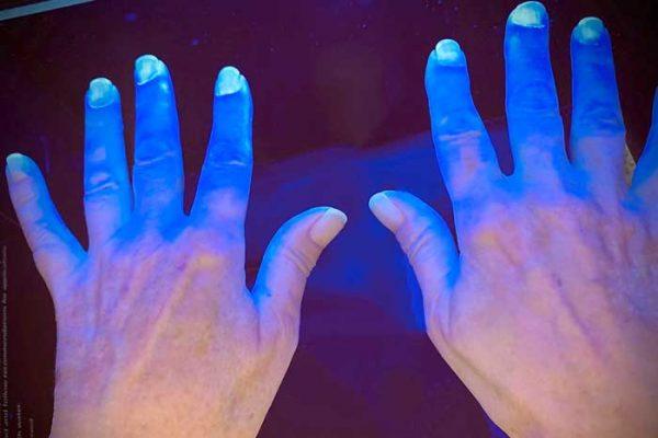Internationaler Tag der Händehygiene - Celenus DEKIMED zeigt Rehabilitanden, wie es richtig geht